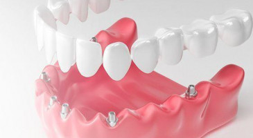 Как проходит имплантация зубов в стоматологической клинике
