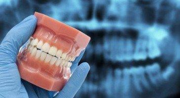 Лечение зубов  — как избавиться от бруксизма