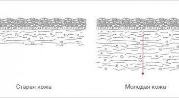 Зачем проводить мезотерапию лица