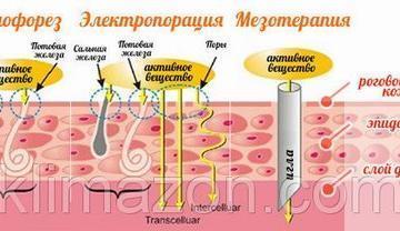 Мезотерапия безынъекционная - совершенно безболезненная процедура