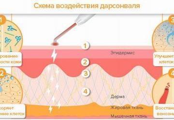Воздействие на угри и угревую сыпь косметологическим аппаратом Дарсонваль