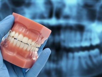 Лечение зубов  - как избавиться от бруксизма