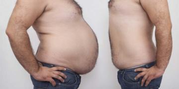Лечение ожирения - липосакция