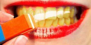 Как отбелить зубы в домашних условиях  - советы от детской стоматологии