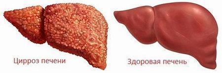 Цирроз печени: симптомы  и виды заболевания