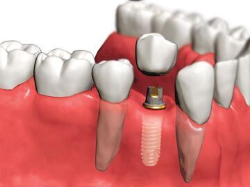 Преимущества современной имплантации зубов в стоматологических клиниках