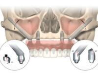 Скуловая имплантация-Zygoma